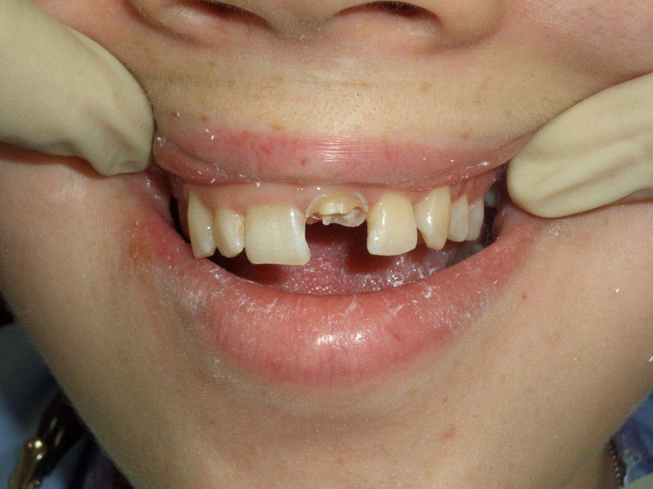 Как сделать зубы если их не осталось 997